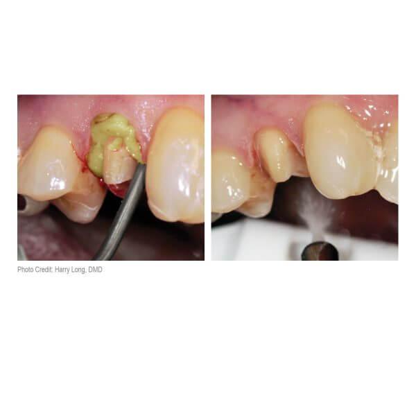 Dryz Gingival Hemostatic Retraction Paste